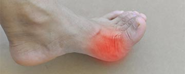 Left foot with red inflamed area near big toe